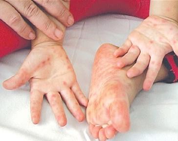 Bệnh Tay, Chân, Miệng - Những dấu hiệu cần phát hiện sớm và cách phòng tránh